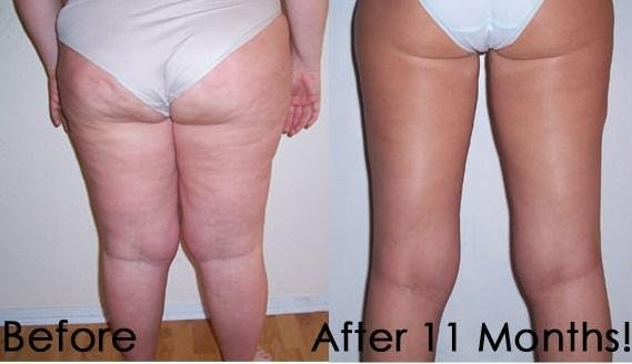 photo 38 of Slim Spa...Wow It Works!!
