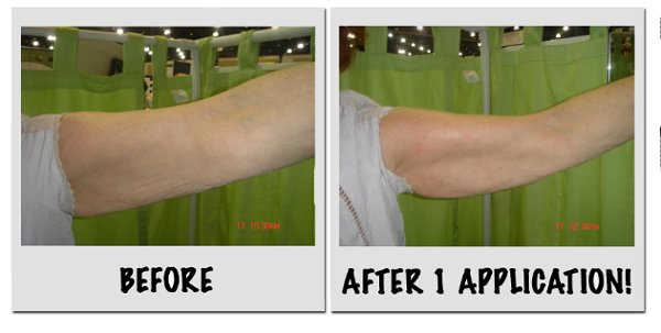 photo 24 of Slim Spa...Wow It Works!!
