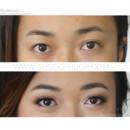 130x130 sq 1457405063830 listella eye compare ig