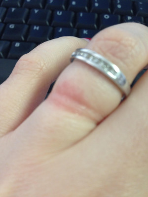 it is definitely not from being too tight i have those marks too but this rash is different - Wedding Ring Rash