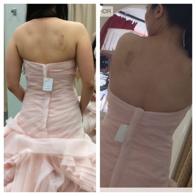 Back fat in a wedding dress