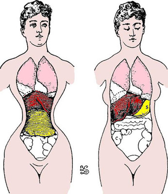 Image result for waist trainers damage organs